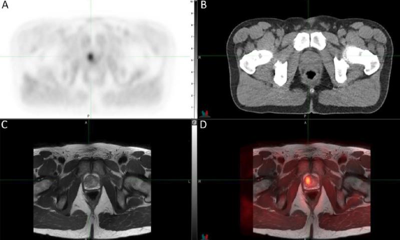 First human application of novel PET tracer for prostate cancer