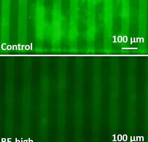 Flexible impedance sensor can fit inside urinary catheters; monitor and treat biofilm