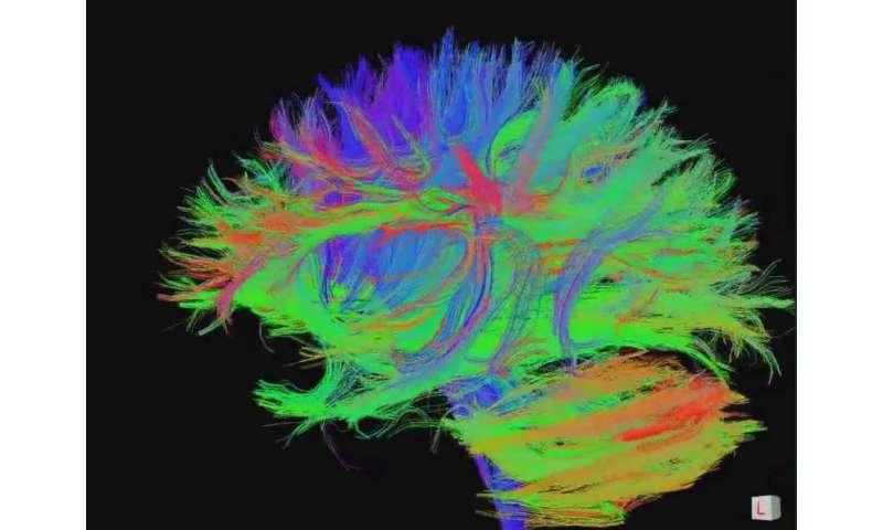 Food for thought? Diet helps explain unique human brainpower