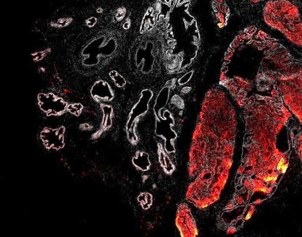 Fundamental research enhances understanding of major cancer gene