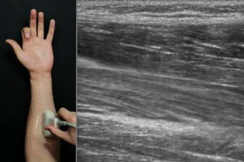 Future smartwatches could sense hand movement using ultrasound imaging