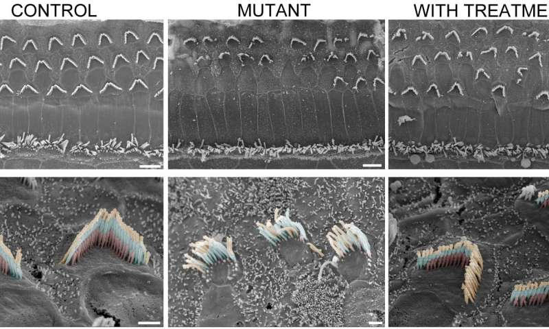 Gene therapy restores hearing in deaf mice...down to a whisper