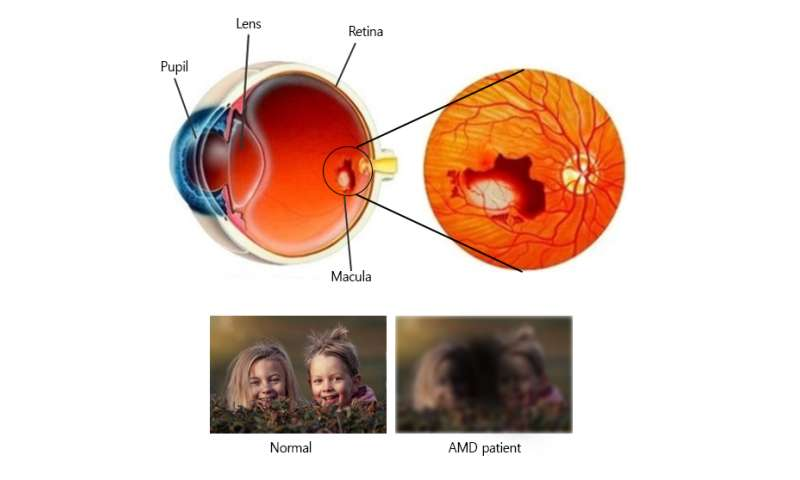 Genome surgery with CRISPR-Cas9 to prevent blindness