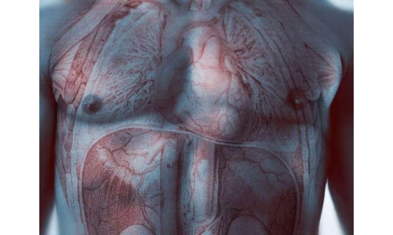 Global burden of cardiovascular disease assessed
