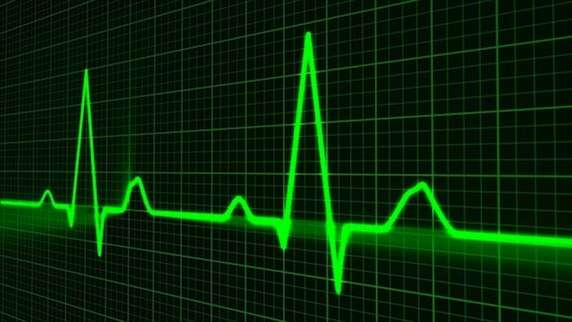 Heart muscle disease patients benefit from defibrillator - research