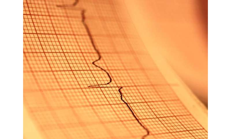 Heart rate variability linked to atrial fibrillation