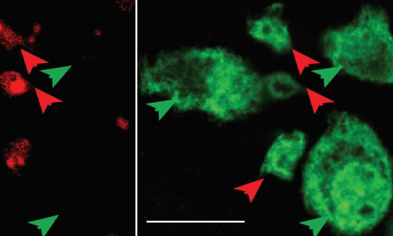 Hopkins researchers discover birth-and-death life cycle of neurons in the adult mouse gut