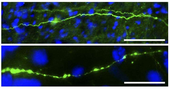 How blows to the head cause numerous small swellings along the length of neuronal axons