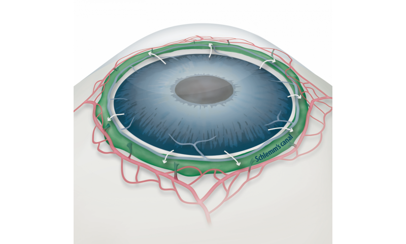 How eyes get clogged in glaucoma and how to free them