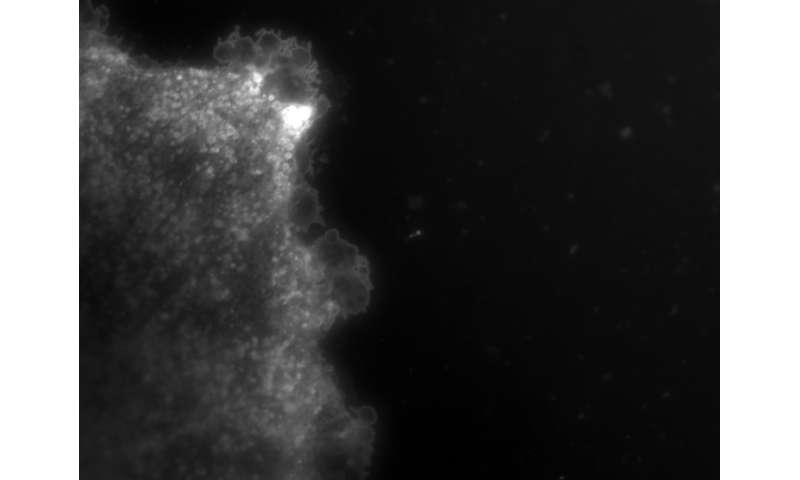 How the injured brain tells the body it's hurt