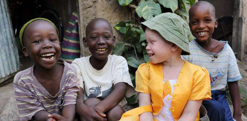 How the media can help protect people with albinism