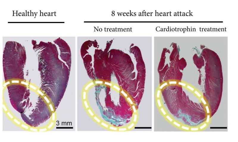 How to trick your heart into thinking you exercise
