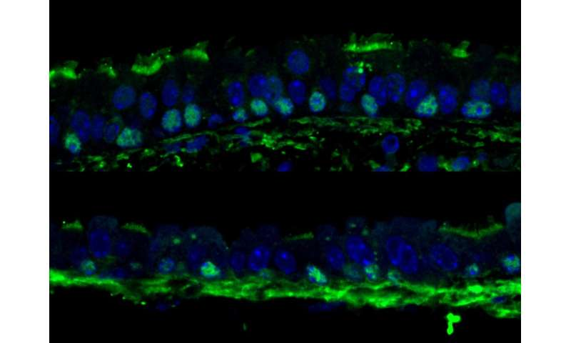 Inhibiting TOR boosts regenerative potential of adult tissues