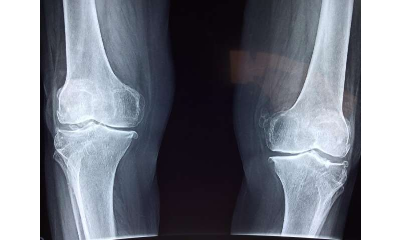 Synthetic joint lubricant holds promise for osteoarthritis