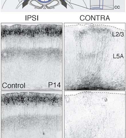 Lending late neurons a helping hand