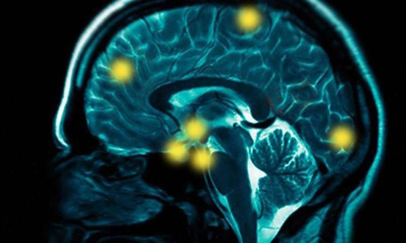 Longtime antidepressant could slow Parkinson's