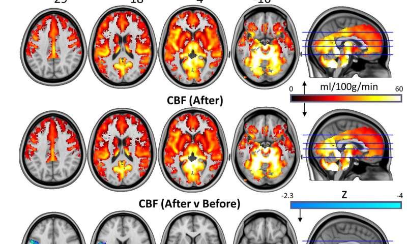 Magic mushrooms may 'reset' the brains of depressed patients