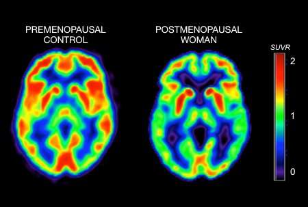 Menopause triggers metabolic changes in brain that may promote Alzheimer's