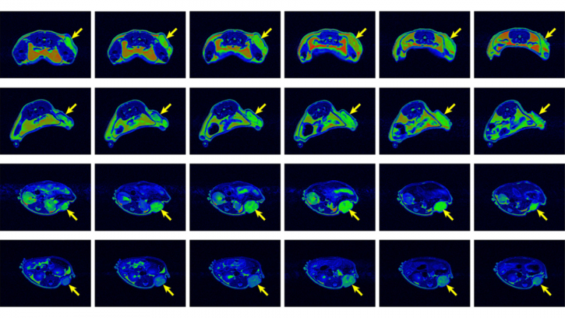 Metal-free nanoparticle could expand MRI use, tumor detection