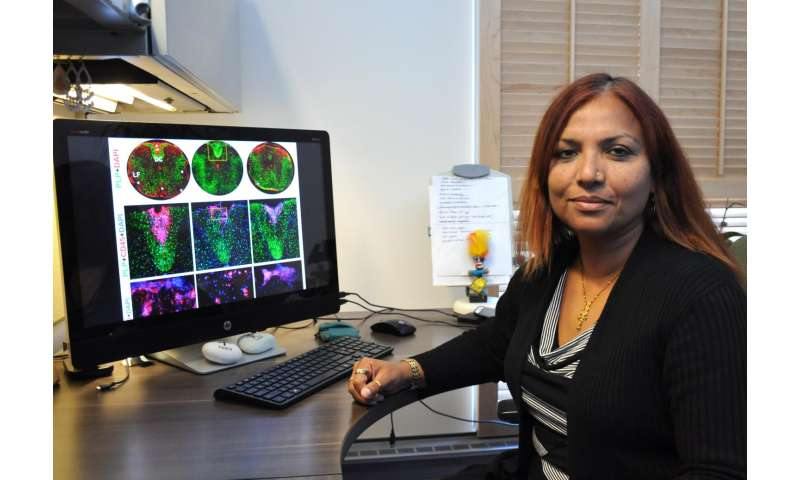 Model helps explain why some patients with multiple sclerosis have seizures