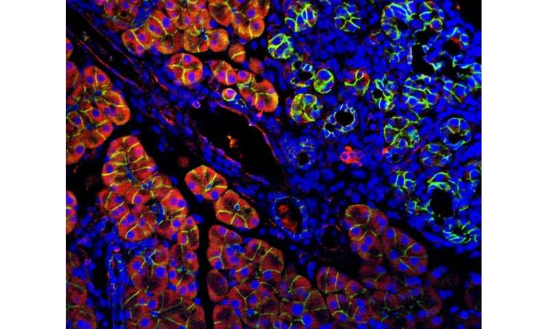 Mutations in gene promoters reveal specific pathway pathologies in pancreatic cancer
