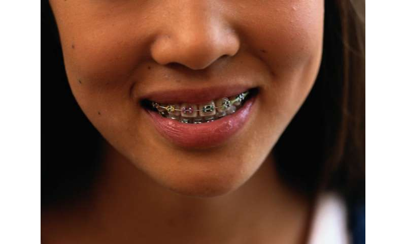 Need braces? say goodbye to 'Metal-mouth' taunts
