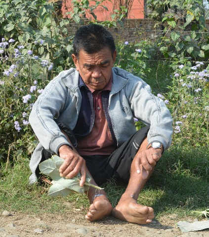 Nepal's rich indigenous medical knowledge is under threat