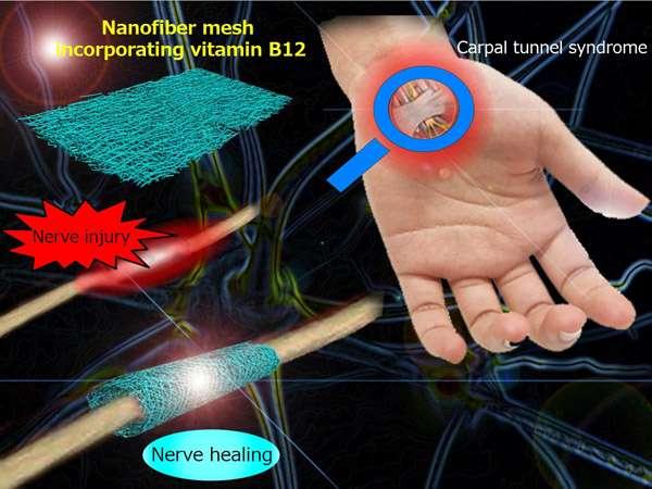 Nerve wrapping nanofiber mesh promoting regeneration