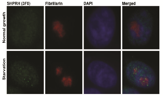 New protein regulated by cellular starvation