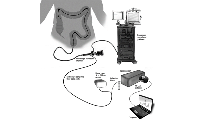 New sensor integrates inflammatory bowel disease detection into colonoscopy procedure