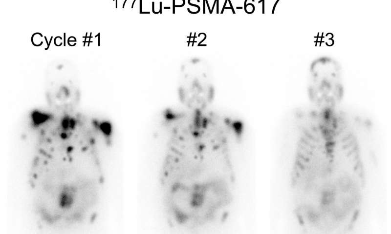 New therapeutic agent proves more effective treatment for advanced prostate cancer