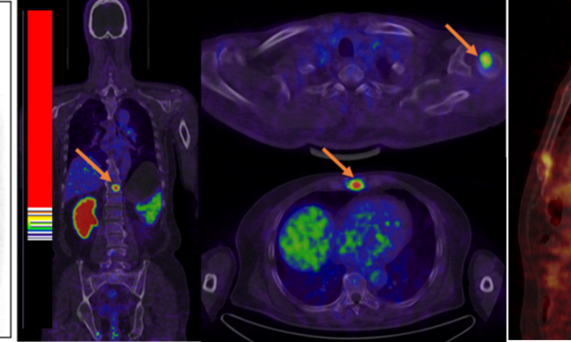 New type of PET imaging identifies primary and metastatic prostate cancer
