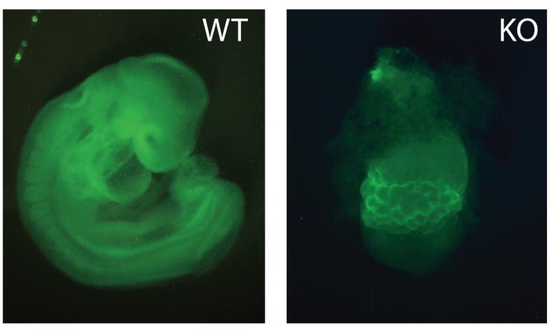 NIH researchers identify key regulator of fetal growth in mice