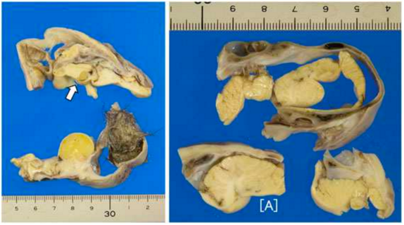 Partially developed brain found in young girl's ovary