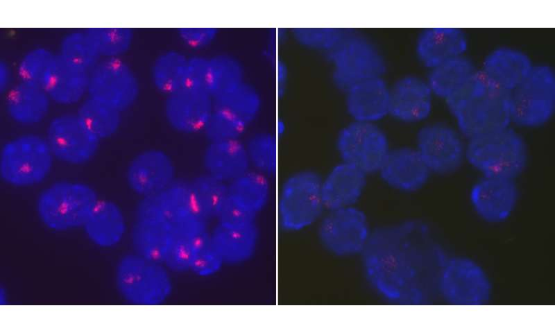 Penn study shows how female immune cells keep their second x chromosome shut off