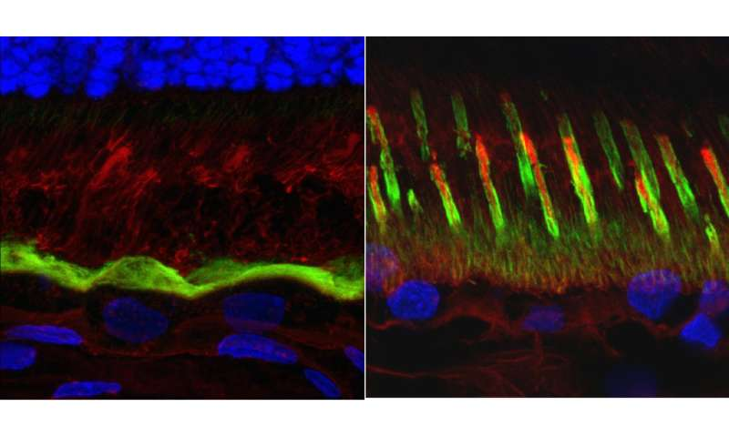 Penn team characterizes the underlying cause of a form of macular degeneration