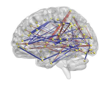 Excess Brain Fluid May Forecast Autism >> Predicting Autism Study Links Infant Brain Connections To Diagnoses