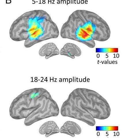 Predicting when a sound will occur relies on the brain's motor system