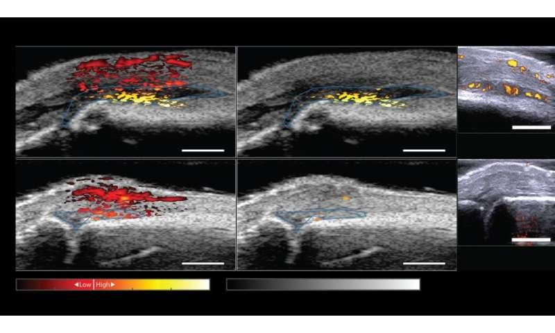 Prototype equipment can detect rheumatoid arthritis