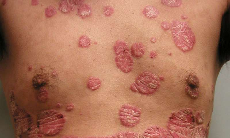 Psoriasis severity linked to increased risk of type 2 diabetes
