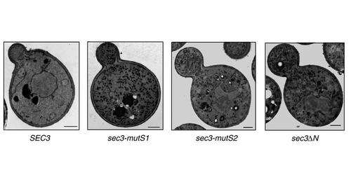 Research describes missing step in how cells move their cargo