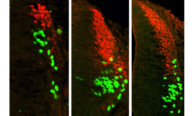 Research redefines proteins' role in the development of spinal sensory cells