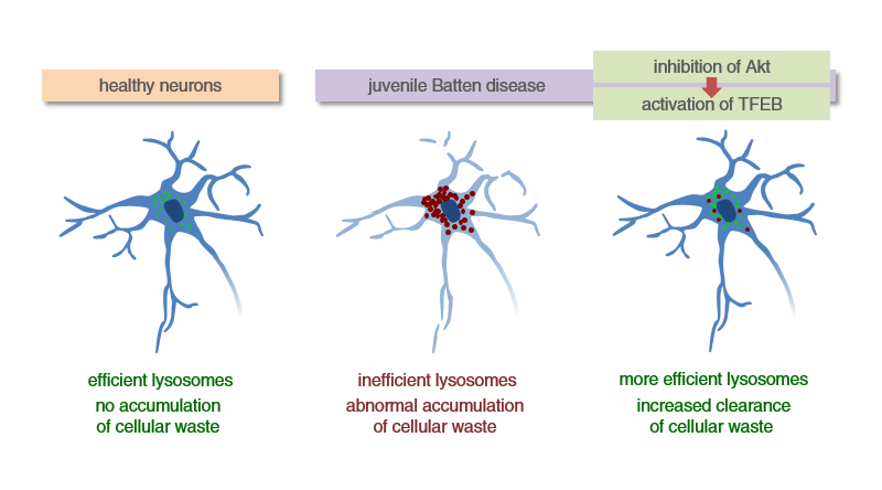 Research reveals strategy to potentially treat juvenile Batten disease