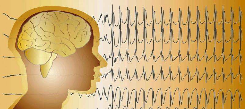 Robot reduces need for open brain surgery to map epileptic seizures