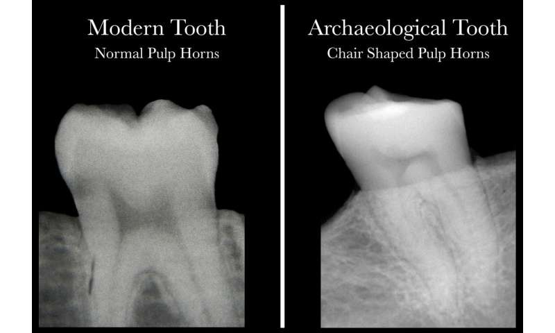 Science meets archaeology with discovery that dental X-rays reveal Vitamin D deficiency