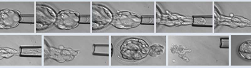 Screening for genetic diseases & chromosomal defects with a single biopsy improves pregnancy rates
