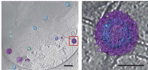 Seeing viruses by both light and electron microscopy