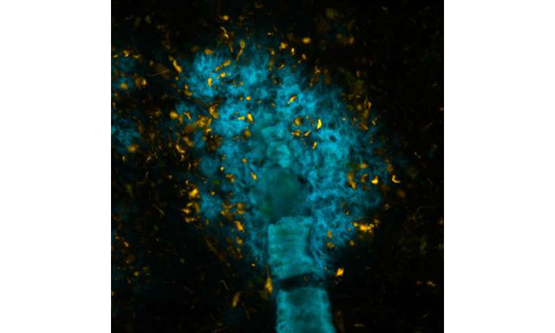 Shining molecules distinguish between proteins in the brain