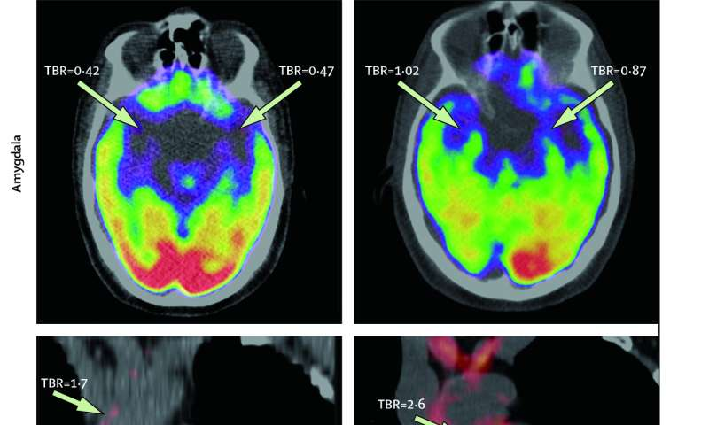 Study first to connect stress-associated brain activity with cardiovascular risk