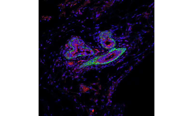 Study identifies RNA molecule that shields breast cancer stem cells from immune system